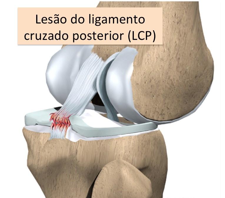 Ligamento cruzado posterior