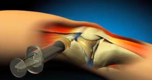 infiltrações artrose joelho